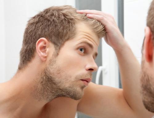 Erkek Tipi Kelliğin Örnekleri ve Sınıflandırması
