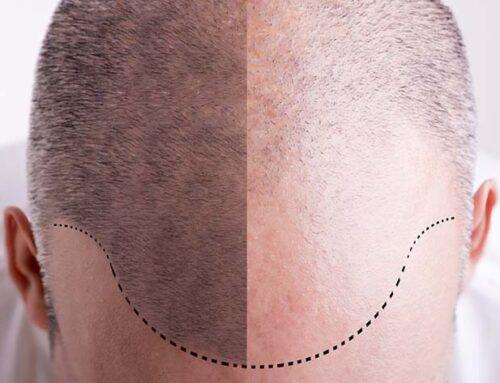 Saç Ekiminde Kaç Graft Ekildiğini Bilmek